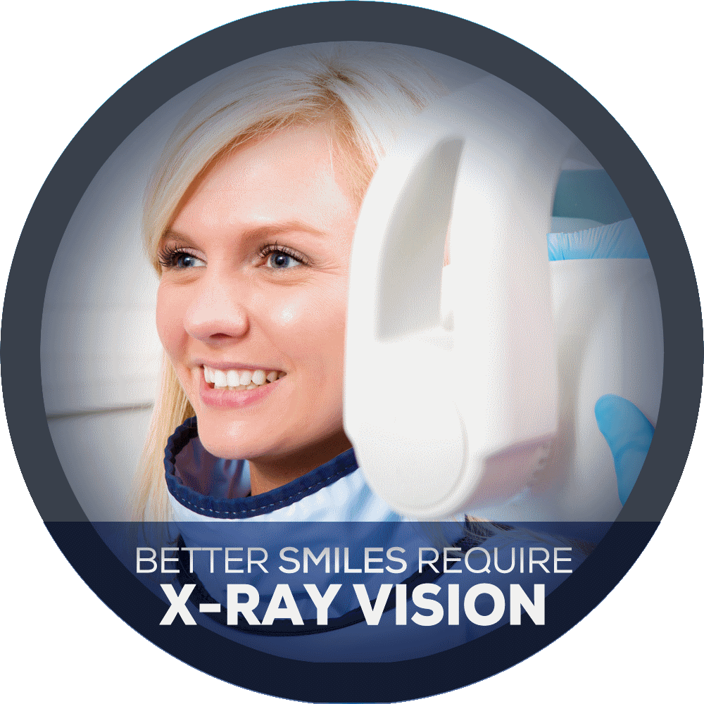 Why Dental X-Rays Are Necessary